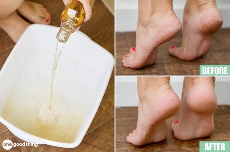Listerine Foot Soak