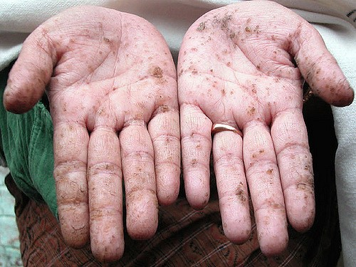 Hands with palms up showing the signs of arsenic poisoning.