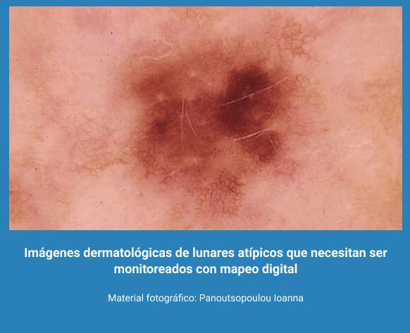 Melanoma 12
