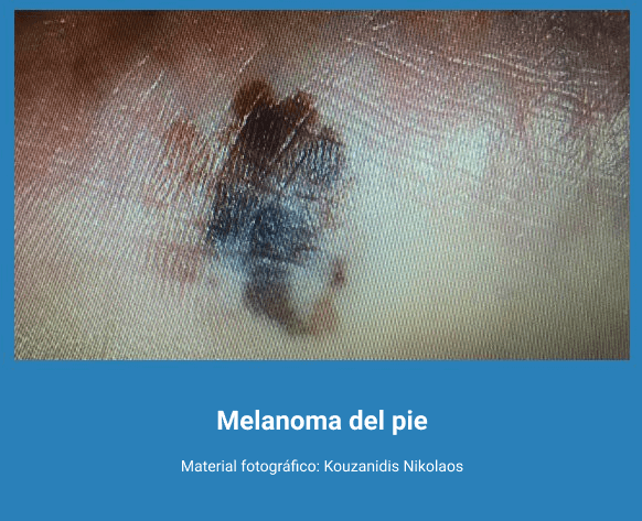 Melanoma 4