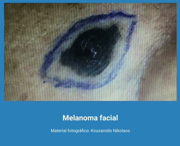 Melanoma 6