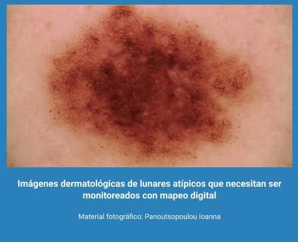 Melanoma 7