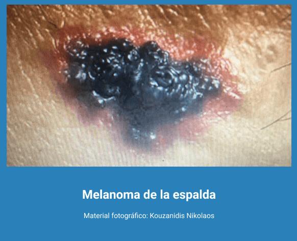 Melanoma 8