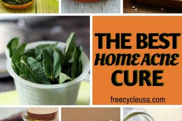Best Home ACNE Treatment