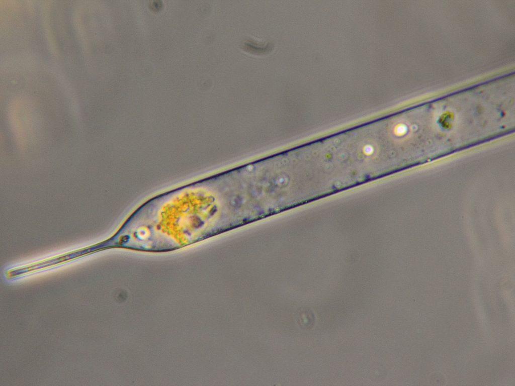 Unknown diatom species