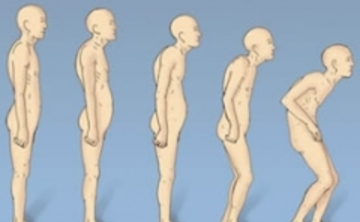 FREE PUBLIC SEMINAR: POSTURAL CORRECTION FOR BETTER BONE HEALTH