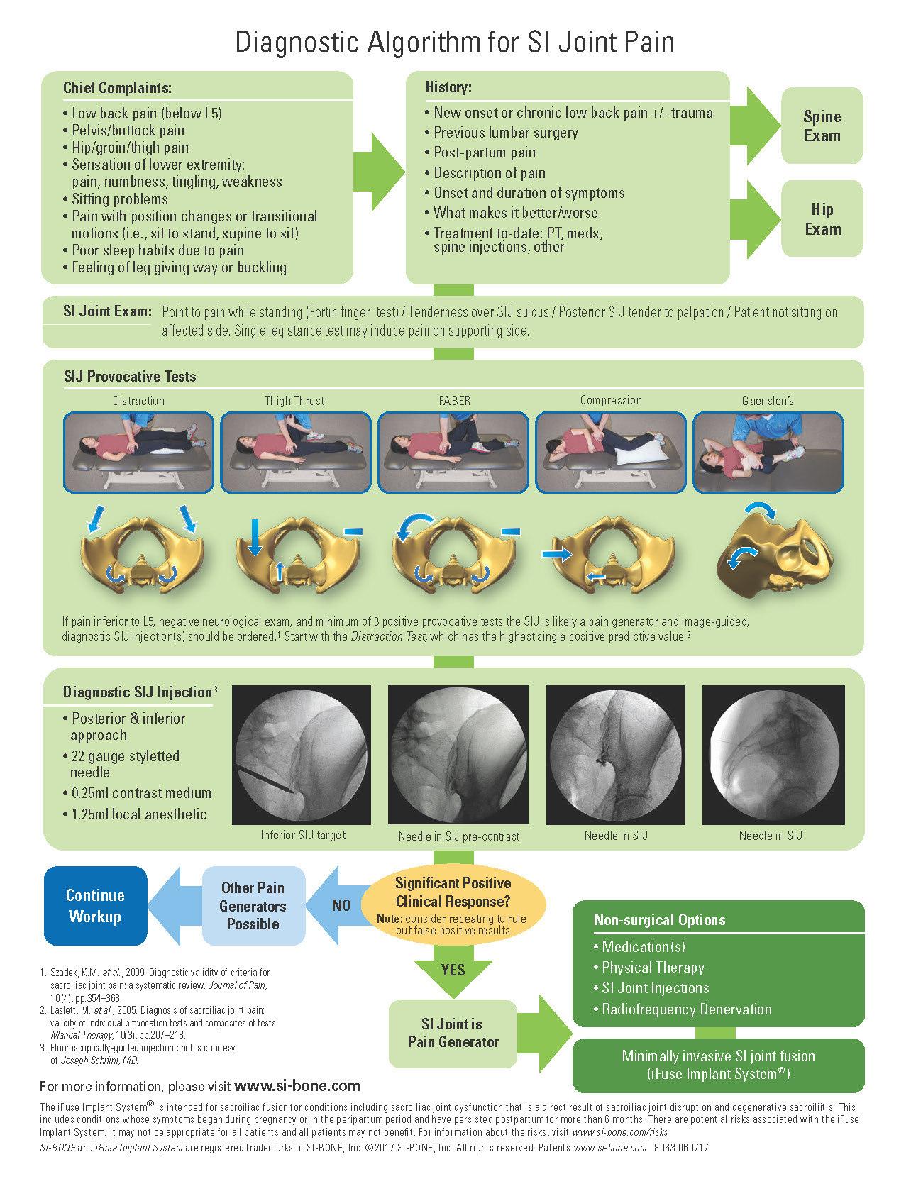Diagnostic Algorithm for SI Joint Pain