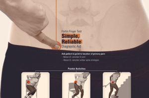 SI-Bone Fortin Finger Test Poster