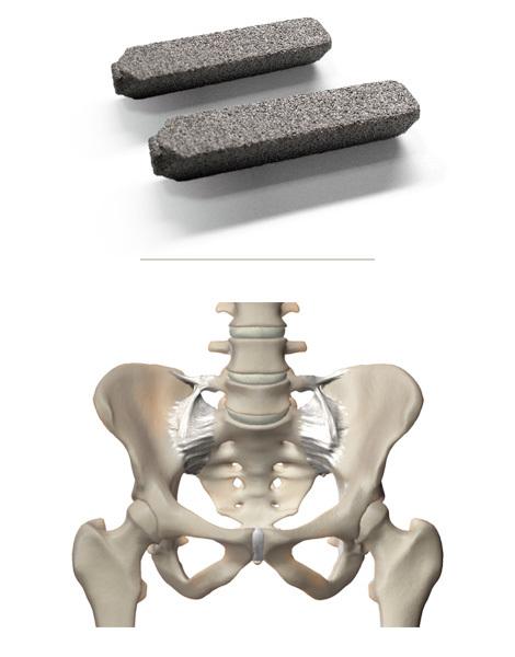 Implants With Pelvis