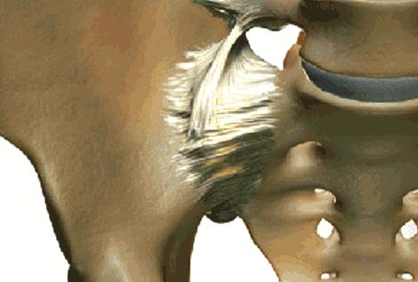 SI Joint Pelvis Closeup