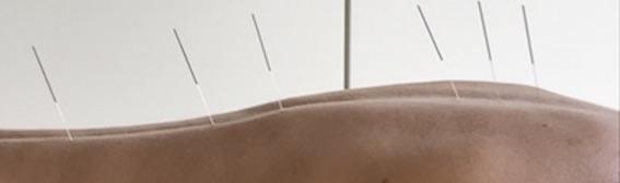 afspraakagenda osteoacupunctuur